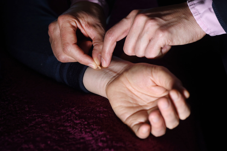 Es müssen nicht immer Nadeln sein. Die Akupunkturpunkte lassen sich auch auf sanfte Weise mit vergoldeten Kügelchen stimulieren. Diese werden mit einem antiallergenen Pflaster auf die Haut geklebt.