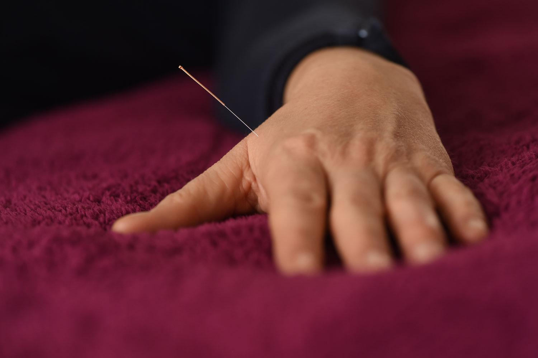 Der Akupunktur-Punkt Hegu liegt auf der Dickdarm-Leitbahn und wird recht häufig genadelt. Die chinesischen Lehrbücher beschreiben ihn als wirksam bei Erkältungen, Kopf- und Zahnschmerzen, als entspannend und hilfreich für den gleichmäßigen Fluss der Lebensenergie Qi.