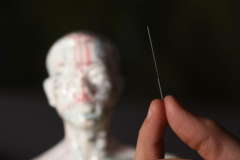 """Ich arbeite mit sterilen Einweg-Nadeln, die mit 0,2 mm Durchmesser sehr dünn sind. Das Einstechen ist daher so gut wie schmerzfrei. Allerdings kann es zu Empfindungen wie leichtem Kribbeln, Brennen oder Druck kommen - das so genannte De Qi. Das bedeutet """"Ankunft des Qi""""."""