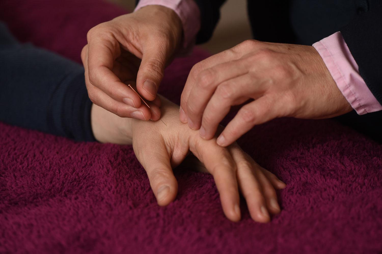 Ich akupunktiere sehr sanft und achte immer auf Konstitution und auch das Schmerzempfinden meiner PatientInnen. Die Nadeln sind mit 0,2 mm Durchmesser sehr dünn - stimulieren aber effektiv die Akupunkturpunkte auf den so genannten Leitbahnen, den Energie-Meridianen.